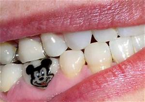 татуировка на зубах